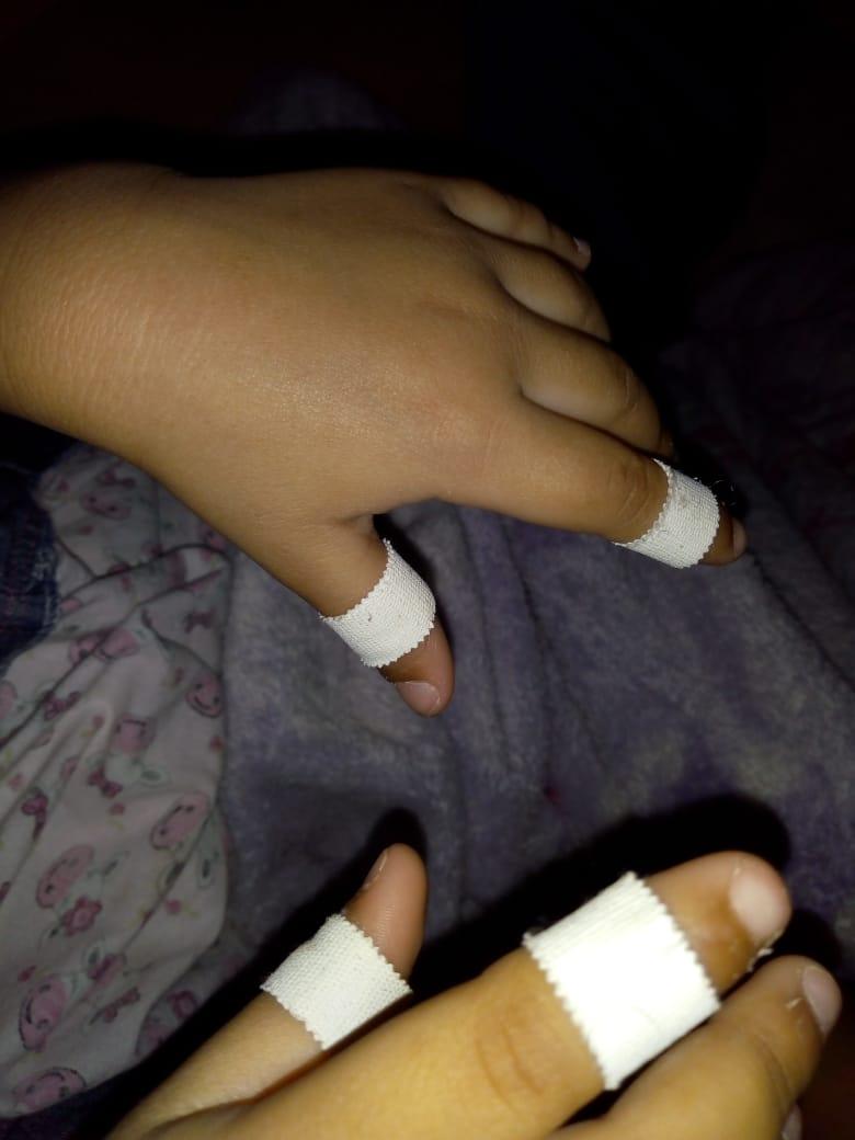 Dedos con esparadrapo.