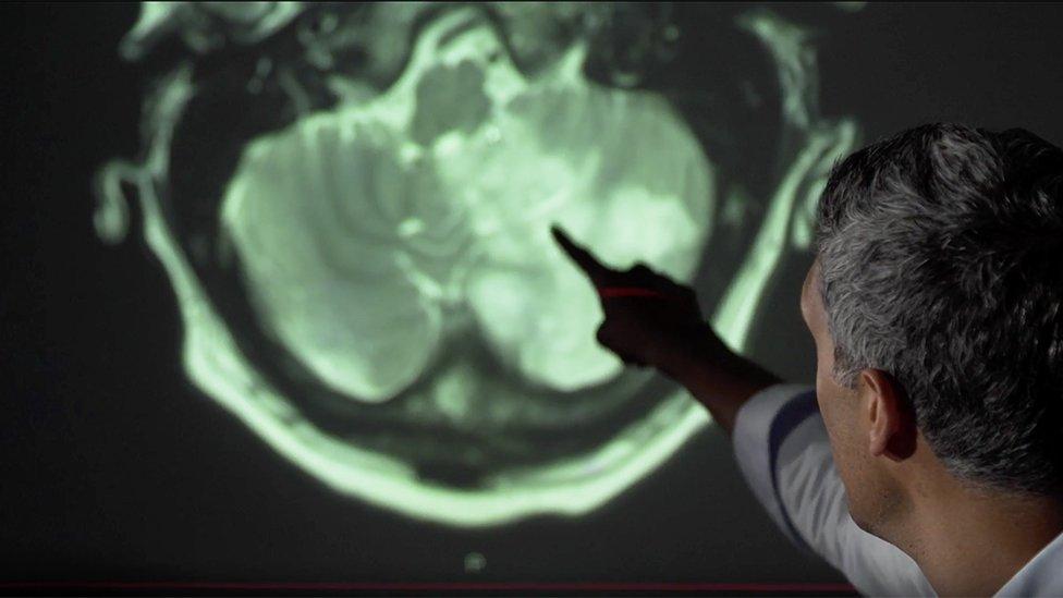 Konsultan neurologis Arvind Chandratheva menunjuk bagian otak yang rusak akibat virus corona.