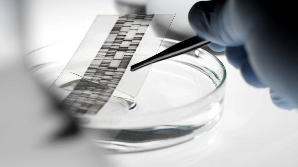 Ni DNK test nije uspeo da odgovori na pitanje koji blizanac je otac