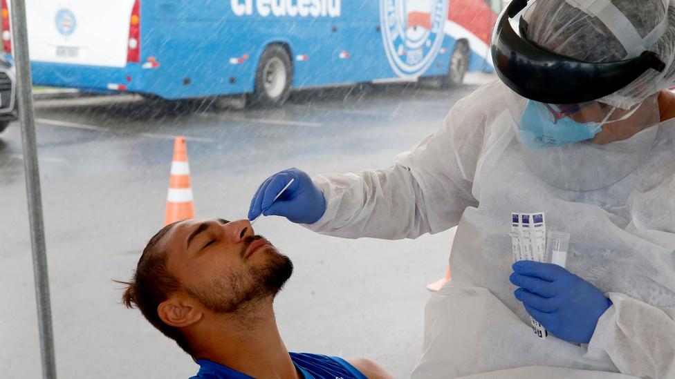 Testagem molecular de jogadores do Esporte Clube Bahia