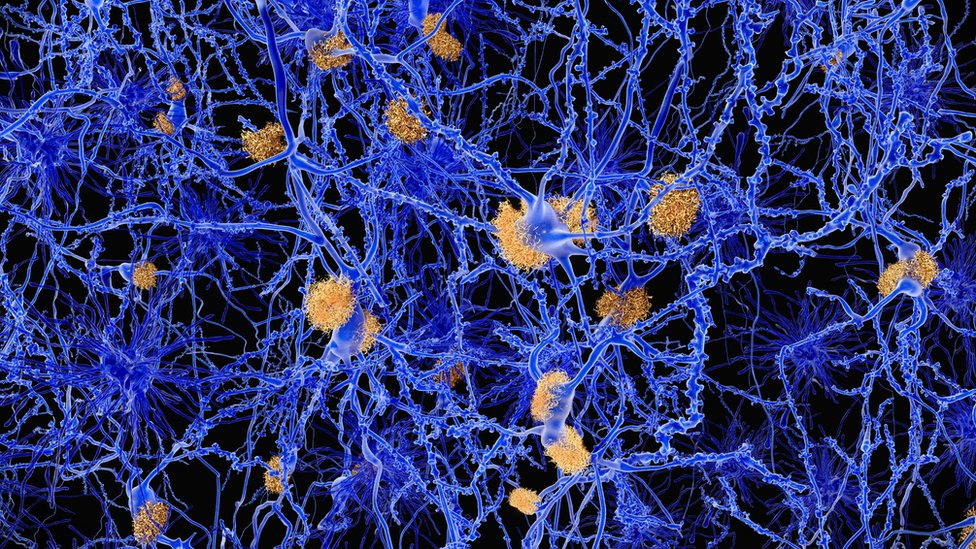 Amyloid plaques in Alzheimer's