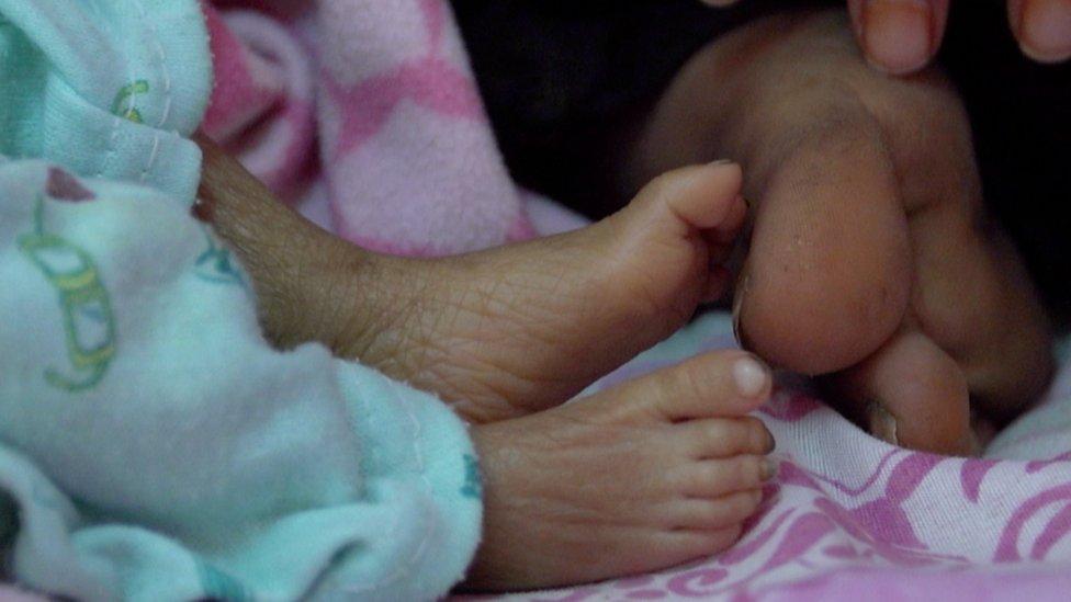 Child's feet in Yemen