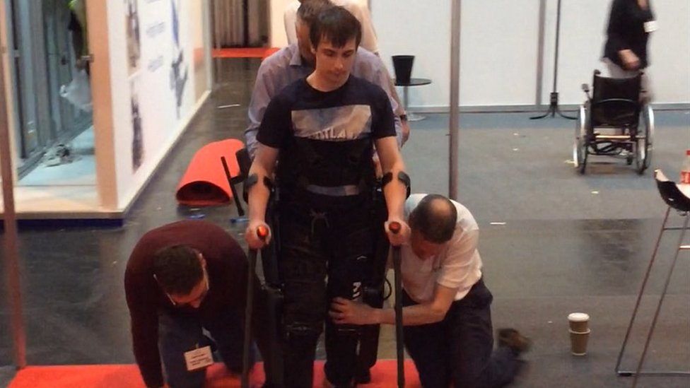 Scots teen in bid for 'life-changing' bionic legs