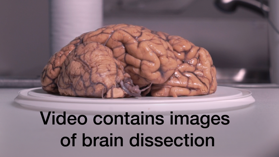 Video demonstrating a brain dissection