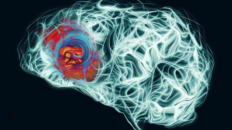 Ilustración dolor en el cerebro.