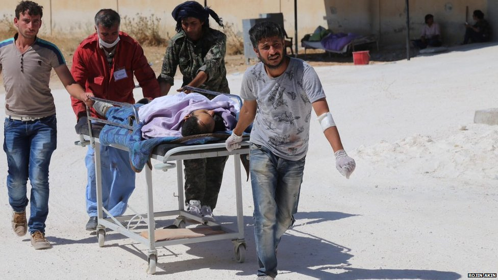 An injured person is stretchered into Emel Kobane Hospital on 25 June 2015