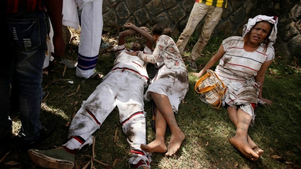 Injured protesters in Bishoftu town, Oromia region, Ethiopia, October 2