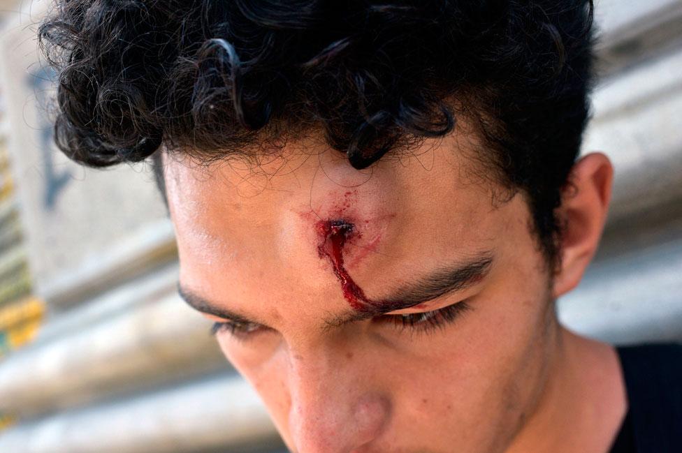 Un joven con una herida en la frente.