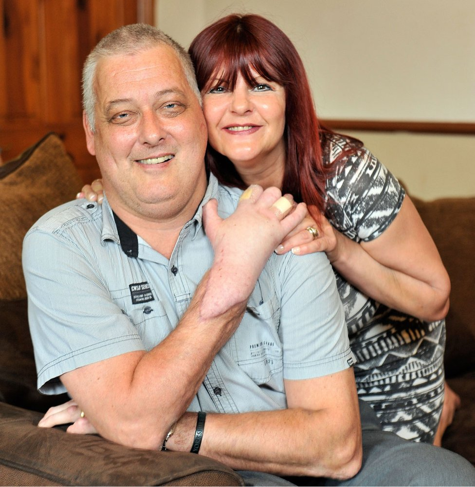 Hand transplant recipient Mark Cahill seen at home with his Wife Sylvia