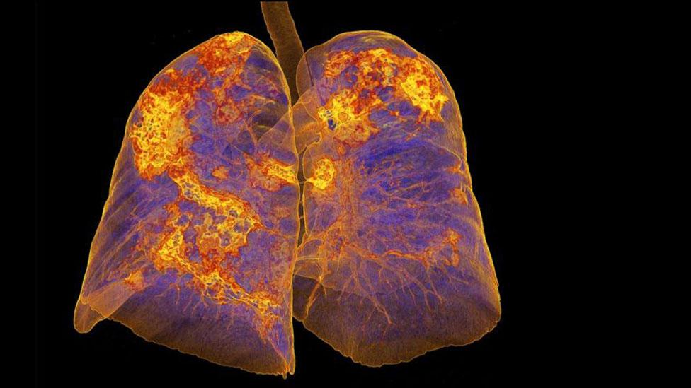 pulmones infectados con coronavirus mostrando áreas de neumonía.