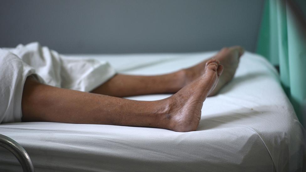 Las piernas de una paciente que padece el síndrome de Guillain-Barré en Brasil