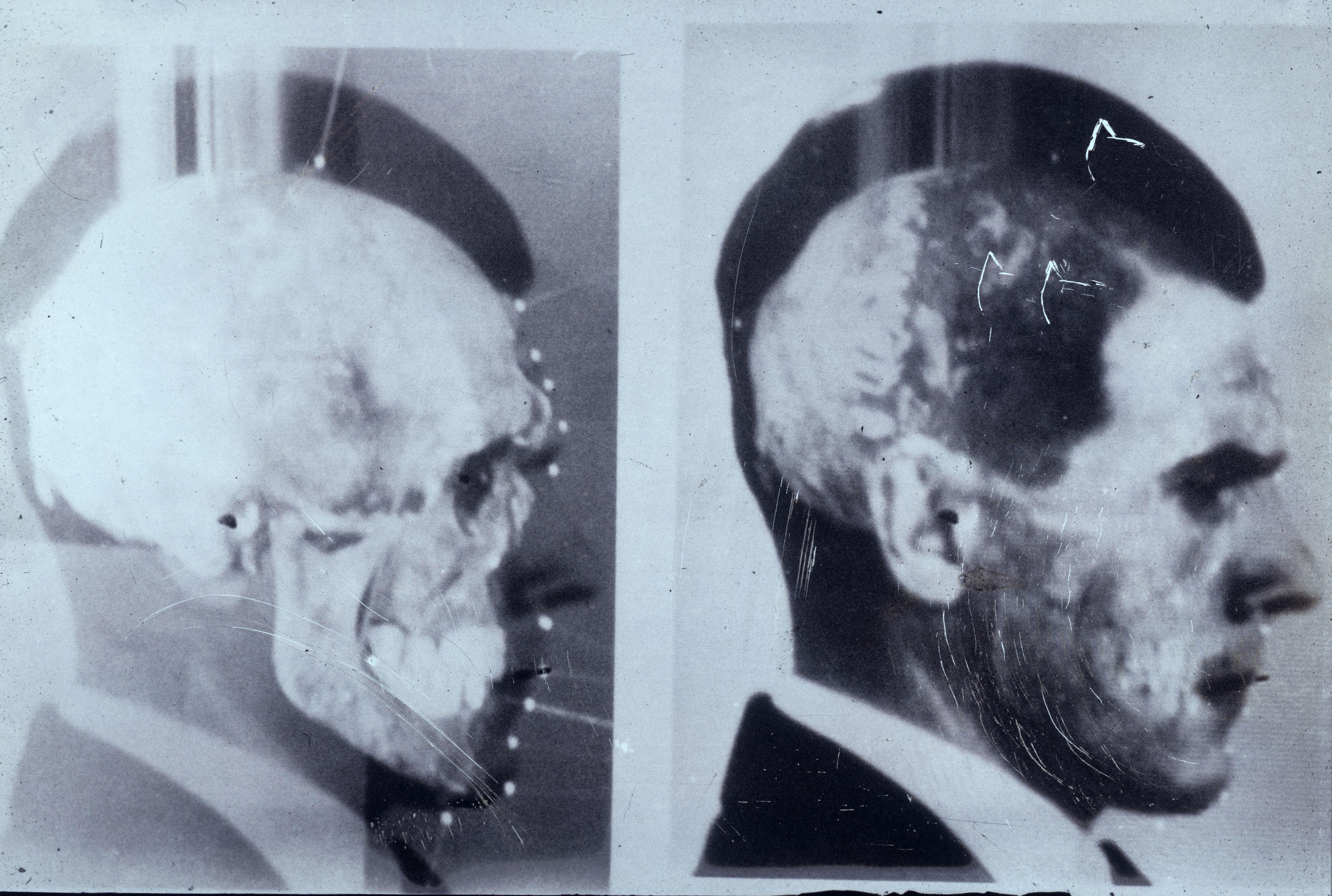 Imagenes de Josef Mengele con el cráneo superpuesto.