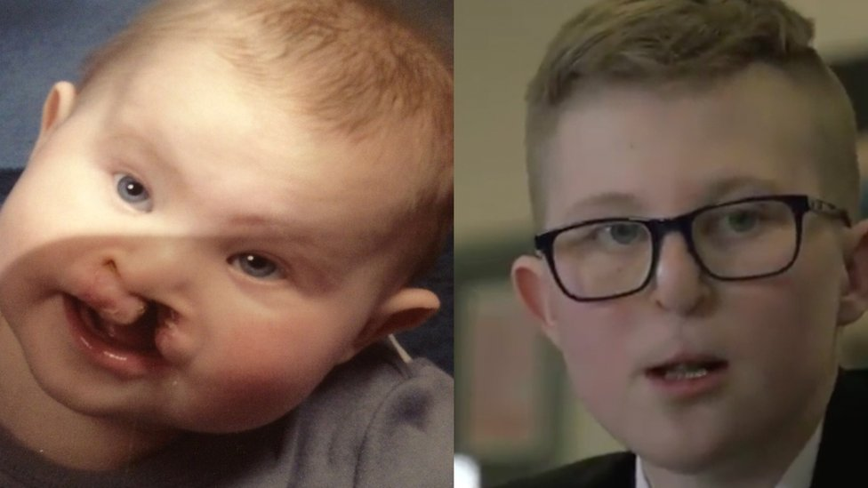 Sheffield student with cleft lip bullied for the way he looked