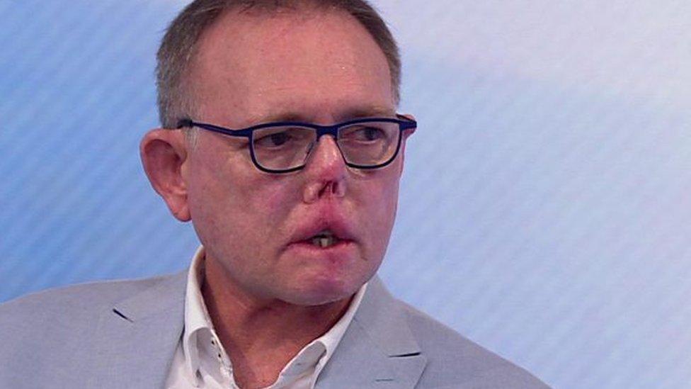 Hombre pierde partes de su cuerpo por septicemia canina