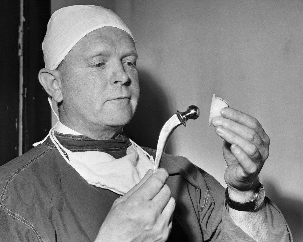 Surgeon Professor John Charnely holds an artificial hip joint made from stainless steel and plastic