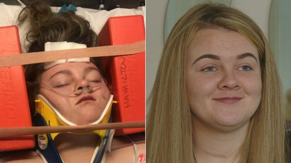 Hit-and-run teen Roisin on the day she almost died