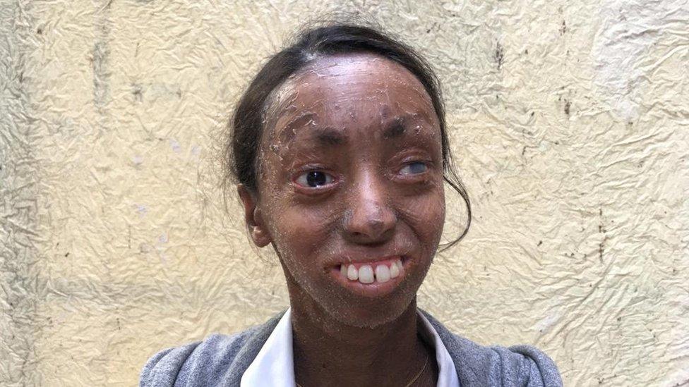 लैमेलर इचथ्योसिस: 'वो बीमारी जिससे मेरी त्वचा शरीर से अलग होती रहती है'