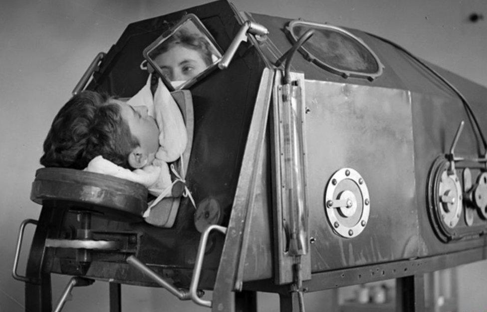 ساعدت الرئة الحديدية الأشخاص المصابين بشلل الأطفال على التنفس لكنها حرمتهم من الحركة تماما