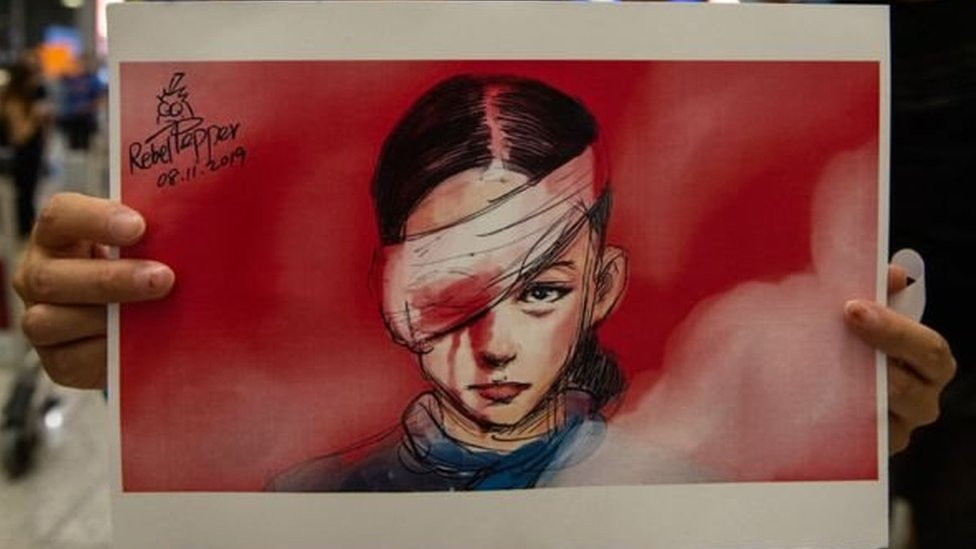 Drawing of a Chinese woman hit in the eye