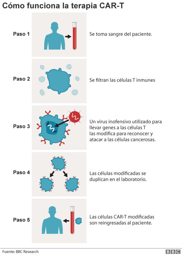 Un gráfico explicando la terapia CAR-T