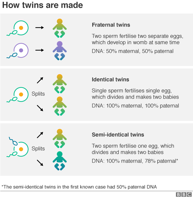 Diagram of how twins are made