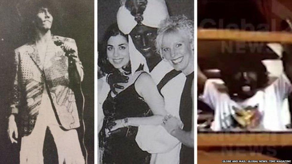 जस्टिन ट्रूडो की 'काले चेहरे' वाली तस्वीरें कहीं उनकी छवि पर दाग़ ना छोड़ जाएं