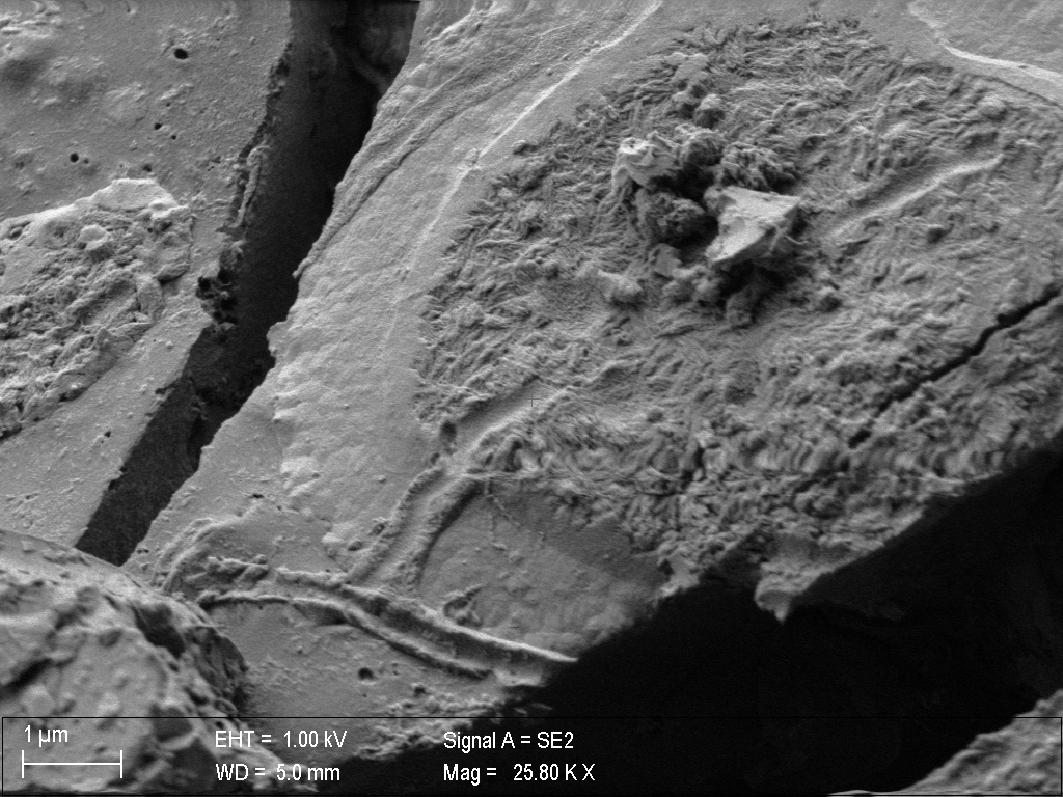 Imagen de tomografía de neuronas de la médula espinal.