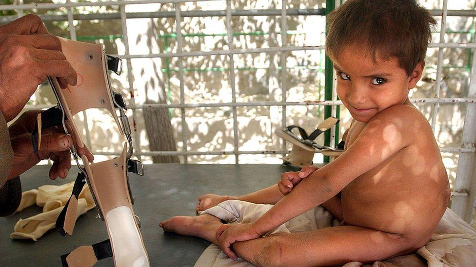 Un niño afgano con polio.