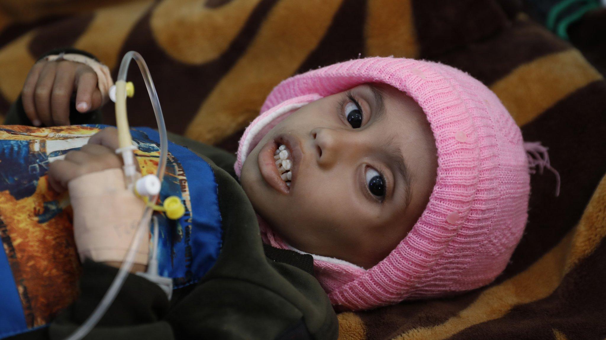 يعاني أكثر من مليوني طفل من سوء التغذية الحاد