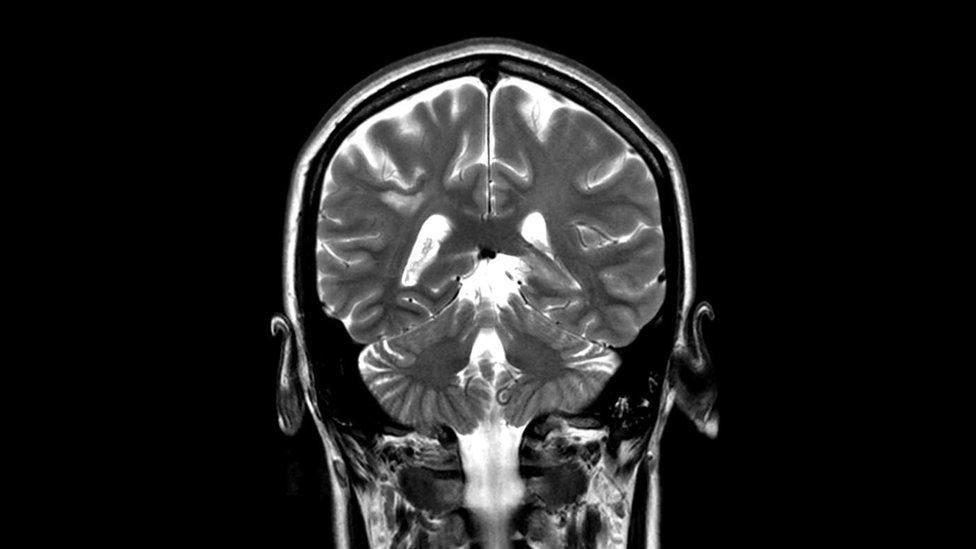 ¿Puede un escáner CT dañar tu cerebro?